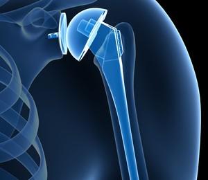 Ολική αρθροπλαστική ώμου-ισχίου-γόνατος
