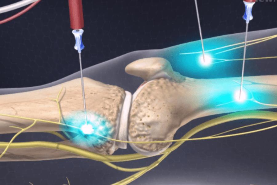 Νέα Πρωτοποριακή Μέθοδος Αντιμετώπισης του Πόνου της Αρθρίτιδας (COOLIEF- COOLED RF)